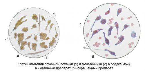 Эпителий почечных лоханок
