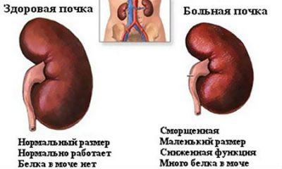 Здоровая и больная почка