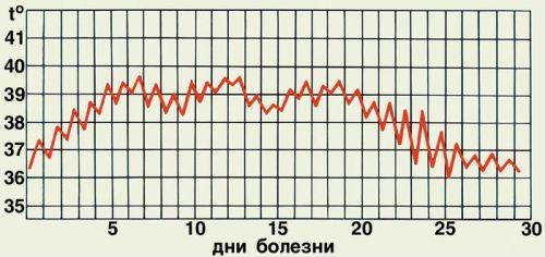 Температурная кривая