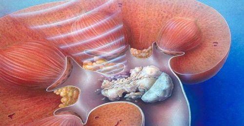 Ультразвуковая ударно-волновая литотрипсия