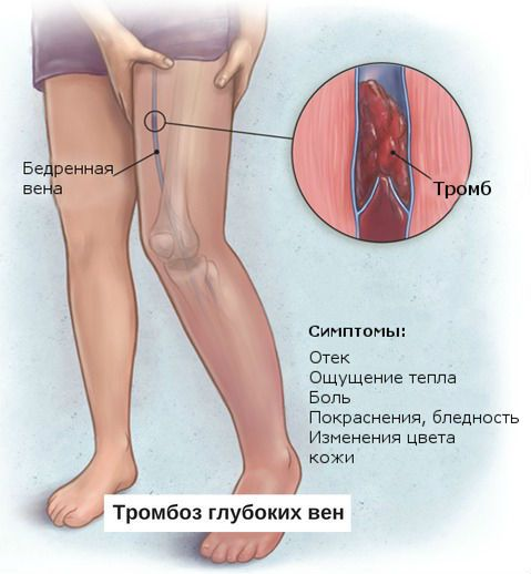 Тромбоз вен на ногах