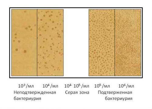 Показатели КОЕ в анализе мочи на бактерии