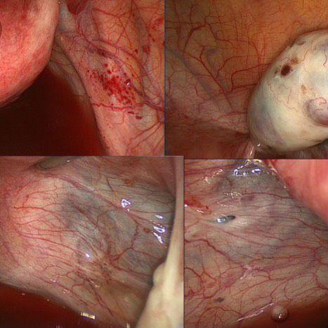Кисты эндометрия