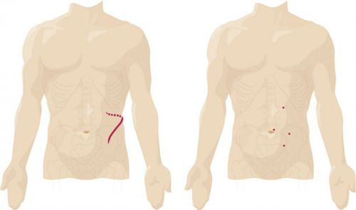 Разрезы кожи при лапароскопии и лапаротомии