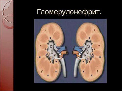 гломерулонефрит