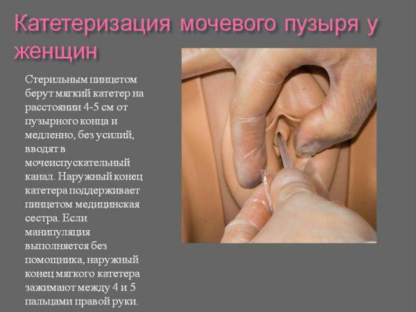 Катетеризация мочевого пузыря у женщин