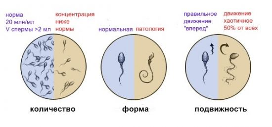 Показатели спермограммы