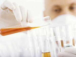 лаборант исследует мочу