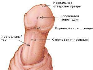 Виды гипоспадии