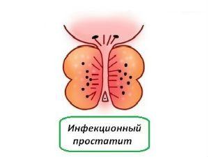 Инфекционный простатит