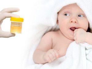 Младенец и баночка с мочой