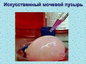Искусственный мочевой пузырь
