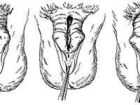 эписпадия у мужчин