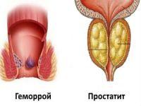 Геморрой и простатит